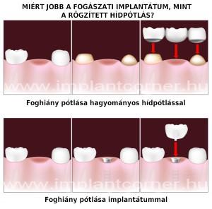 Miért jobb a fogászati implantáció, mint a hídpótlás? fogpótlás