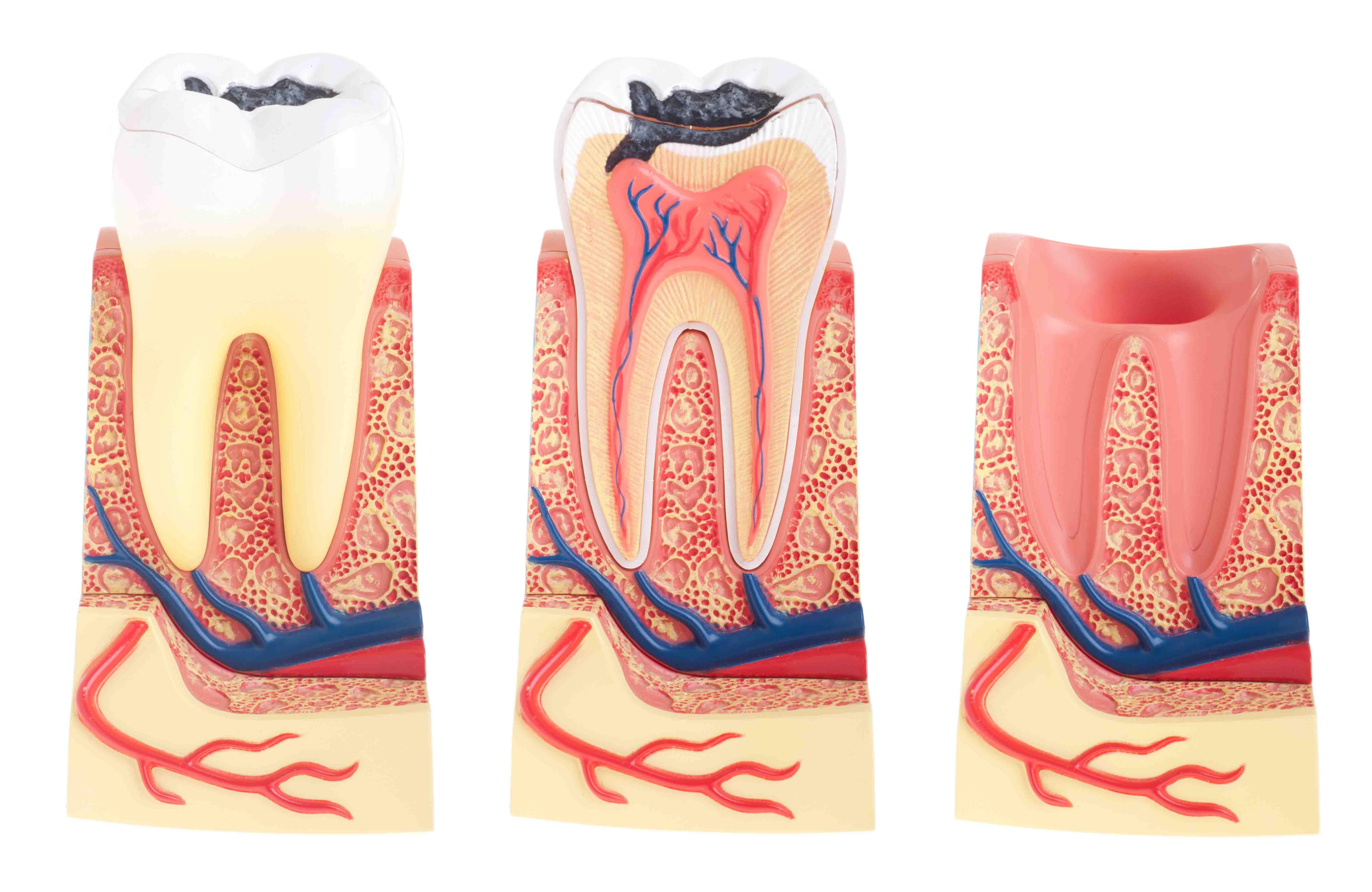 A fogszuvasodás megelőzése